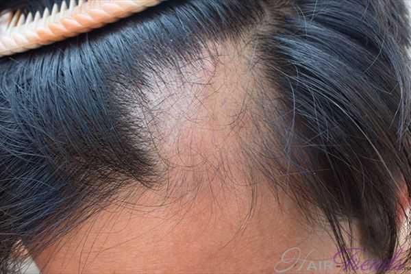 Луковый сок от выпадения волос очаговая алопеция