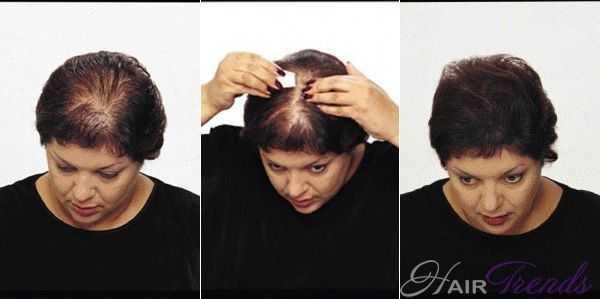 Что такое загуститель для волос Топпик и как его применять