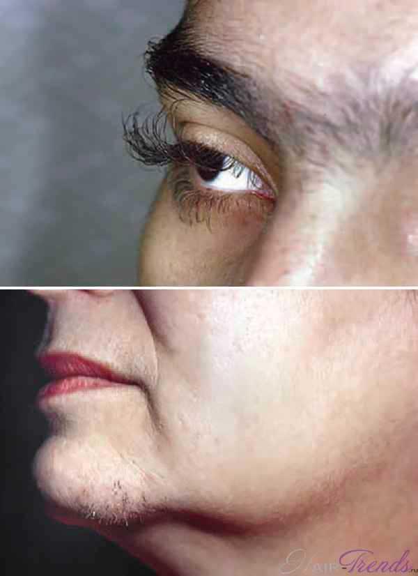 Гипертрихоз у женщин - фото
