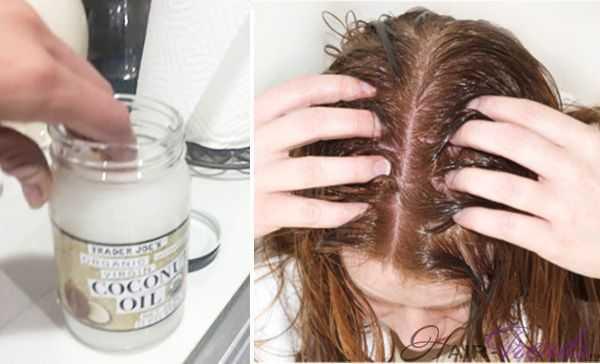 Как избавиться от зуда на коже головы