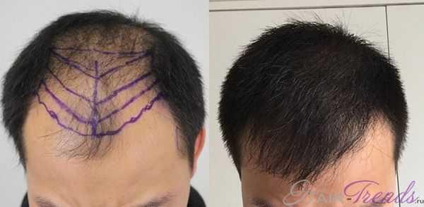 Как происходит пересадка волос и помогает ли она