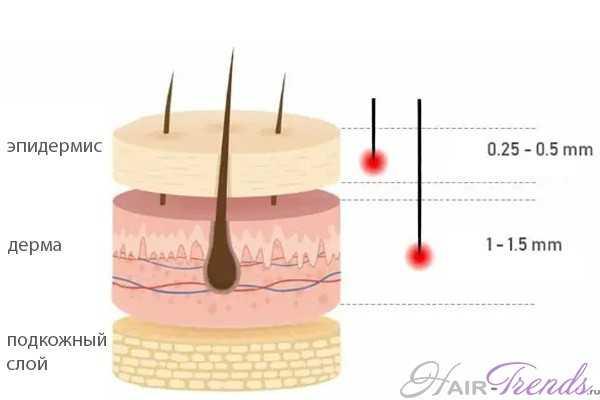 Как выбрать размер игл мезороллера для лечения выпадения волос