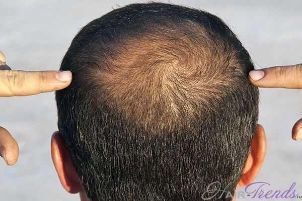 Какие лекарства вызывают выпадение волос