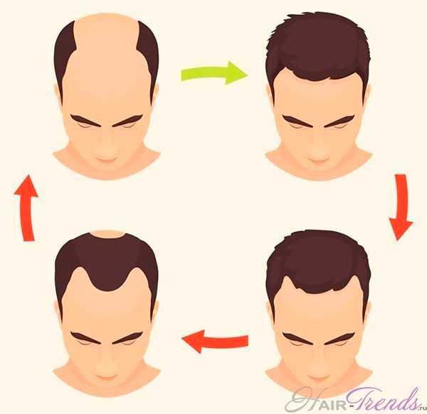 Кверцетин - польза при выпадении волос