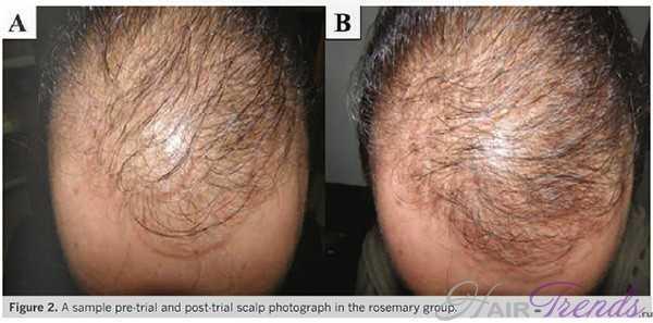 Масло розмарина от выпадения волос так же эффективно, как миноксидил