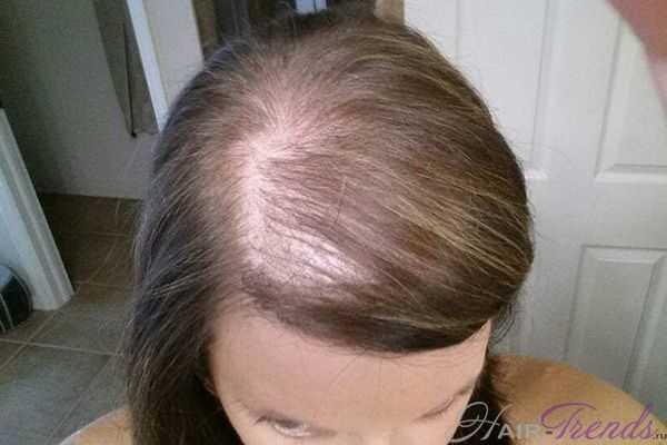 Метформин и выпадение волос