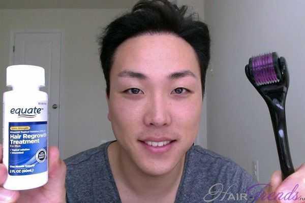 Мезороллер и миноксидил против выпадения волос
