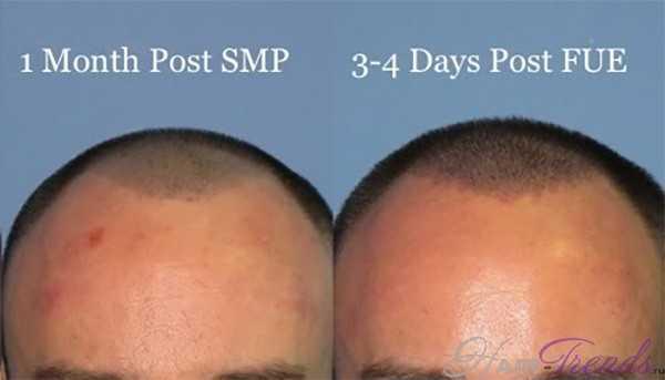 Микропигментация кожи головы при облысении