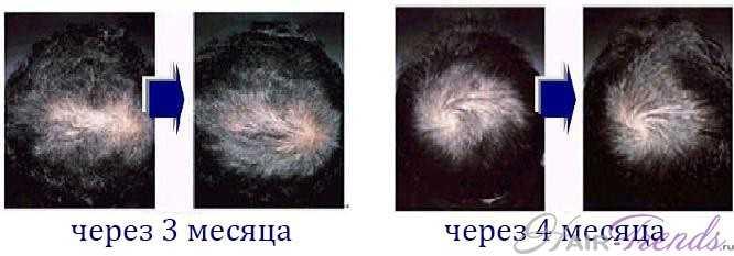 Пептиды меди для волос