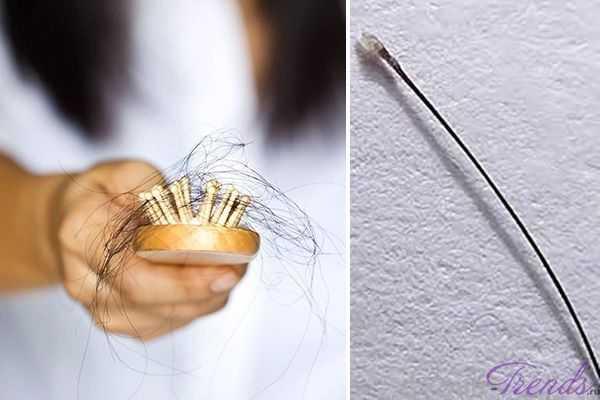 Волос падает с луковицей
