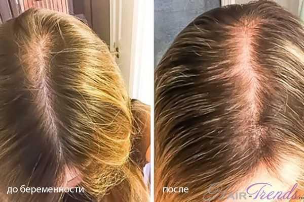 Послеродовое выпадение волос