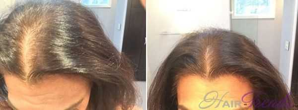 RPR терапия (плазмотерапия) для волос стоит ли делать