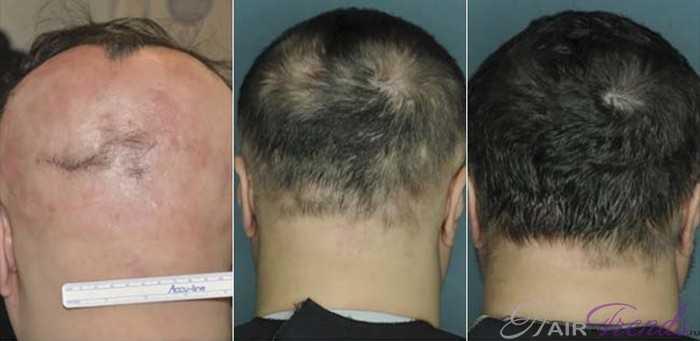 Руксолитиниб и Тофацитиниб для роста волос