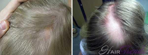 Каковы причины выпадения волос на голове у девушки и как решить проблему