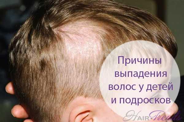 Возможные причины потери волос