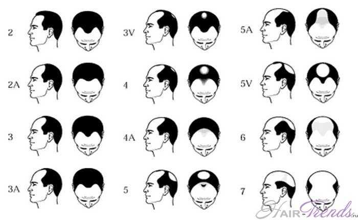 В каком возрасте можно делать пересадку волос?