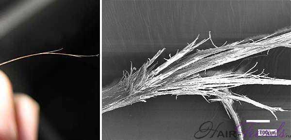 Заболевание волос трихоптилоз