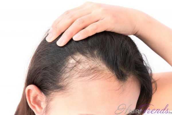Возможно ли выпадение волос из-за шапки