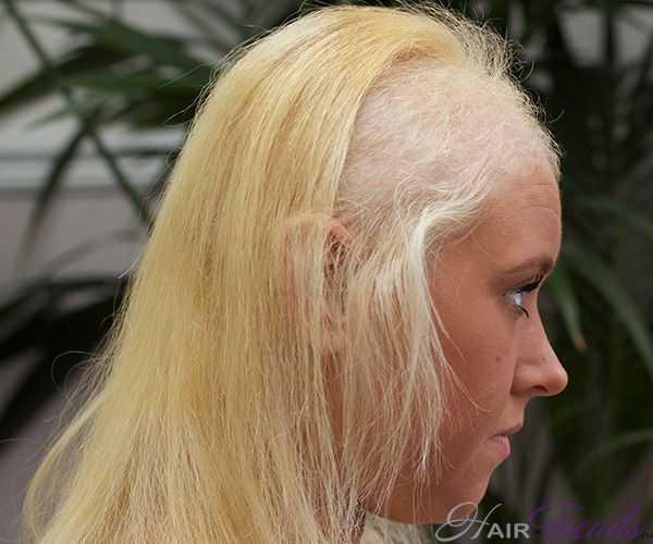 Вырывание волос на голове - как лечить трихотилломанию